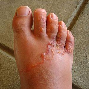 síntomas de parásitos de los perros en humanos