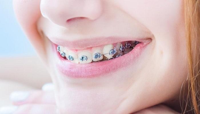 Cómo Funciona Una Ortodoncia