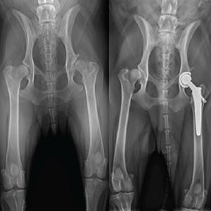 La displasia de cadera tiene cura