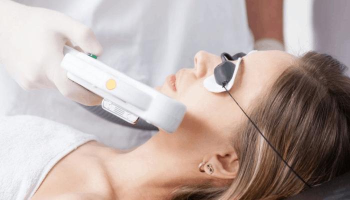 Tratamiento con láser