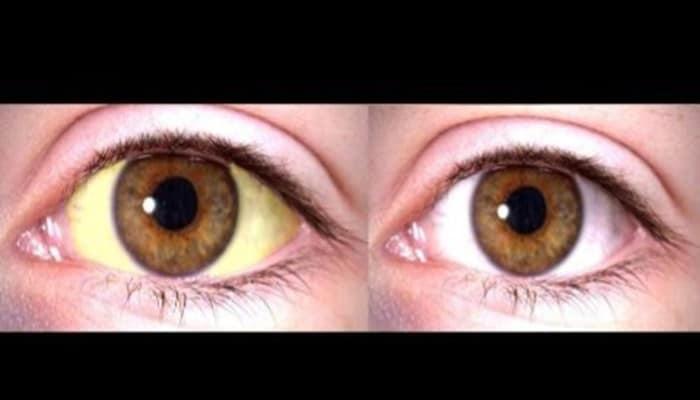 como aclarar los ojos